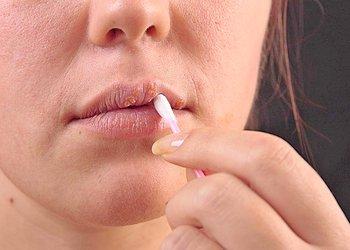 как лечить герпес на губе быстро