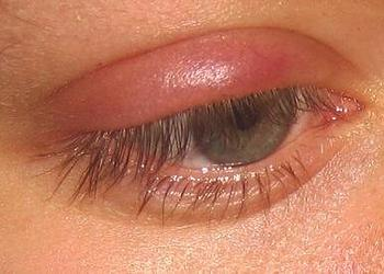 Причины ячменя на глазу
