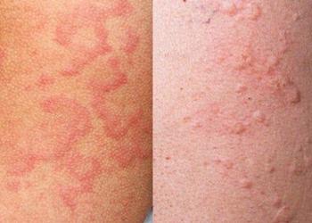 Аллергическая реакция в виде сыпи на пробу Манту