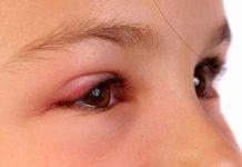 мейбомиевый блефарит симптомы и лечение