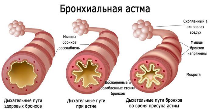 Бронхиальная астма у детей: явные и скрытые симптомы, неотложная помощь и лечение