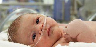 церебральная ишемия у новорожденного