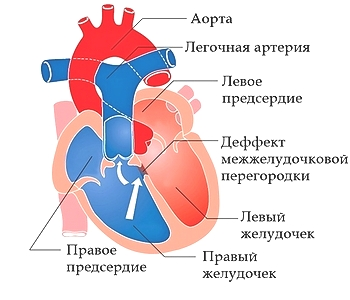шумы в сердце у новорожденного