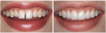 Люминиры на кривых зубах - до и после