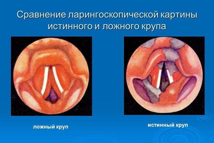 ostriy-laringotraheit-u-vzroslih