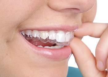 силиконовые капы для выравнивания зубов