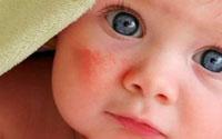 Эмоленты: список препаратов для сухой и атопичной кожи