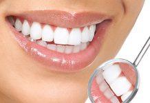 Люминиры на зубах