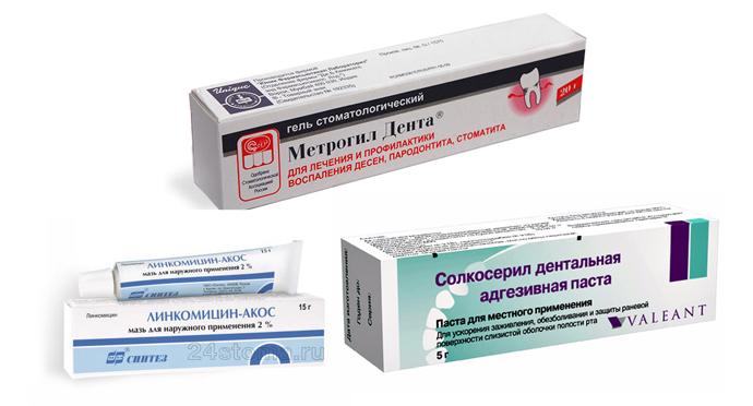 чем лечить гингивит при беременности
