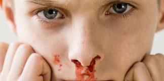 у ребенка утром кровь из носа что делать