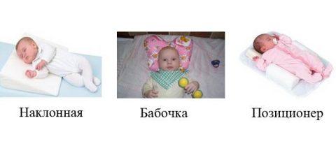 виды ортопедических подушек для новорожденных при кривошее