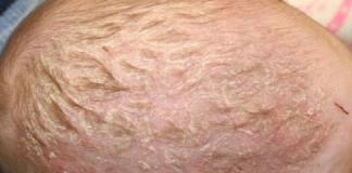 Шелушится кожа у новорожденного