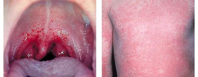 симптомы скарлатины у детей с фото