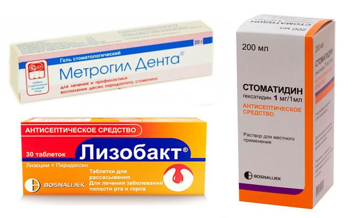 гингивит у детей симптомы