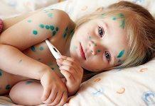 Симптомы ветрянки у детей