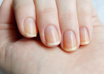 от чего появляются белые пятна на ногтях