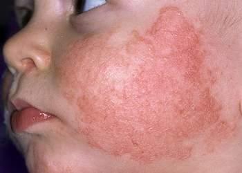 Симптомы атопического дерматита у детей до года