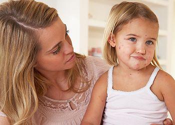 Первые симптомы ветрянки у детей