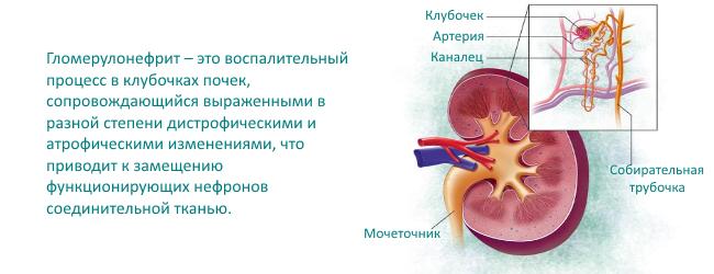 Гломерулонефрит симптомы