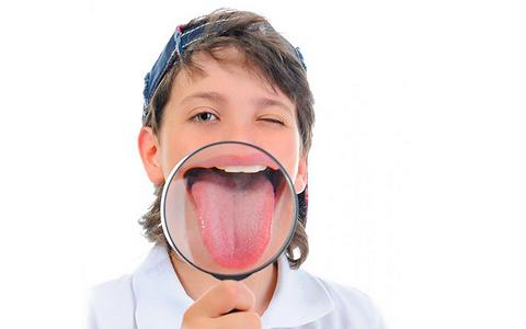 белый налет на языке у ребенка