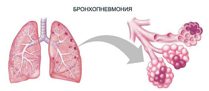 двусторонняя бронхопневмония у детей