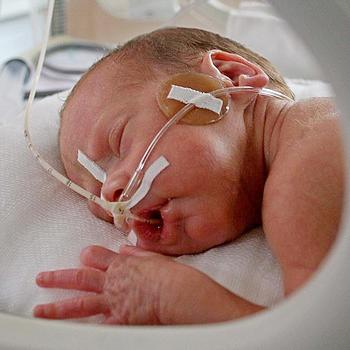 церебральная ишемия 1 степени у новорожденного