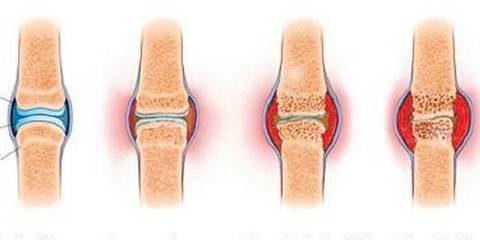 ревматоидный артрит: симптомы, лечение, диагностика у взрослых и степени заболевания