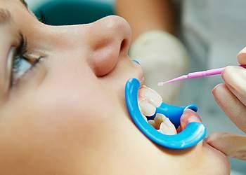 фторирование зубов детям