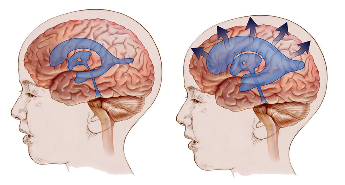 Гидроцефалия головного мозга и норма