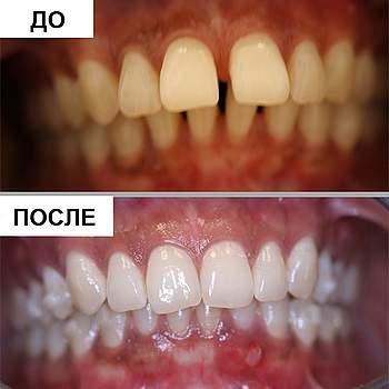 капы для выравнивания зубов до и после фото