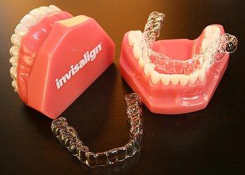 капы инвизилайн для выравнивания зубов