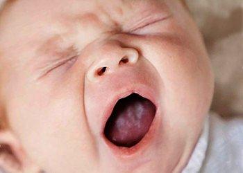 Лечение кандидозного стоматита у младенцев