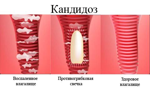лечение молочницы при грудном вскармливании медикаментами