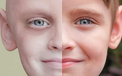 лейкоз у детей симптомы