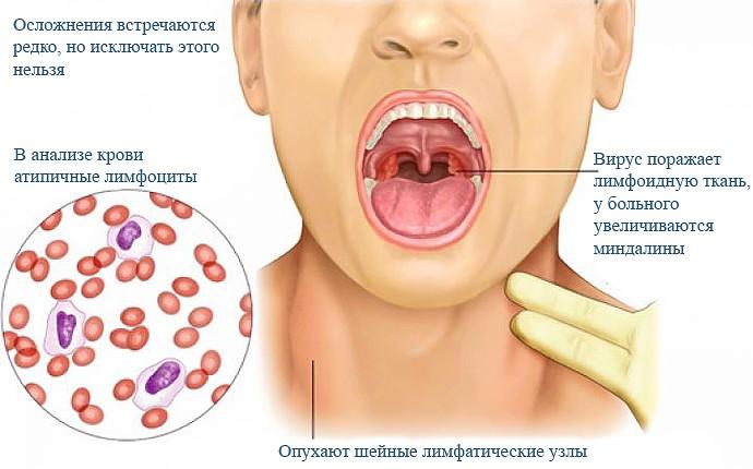 мононуклеоз у детей симптомы