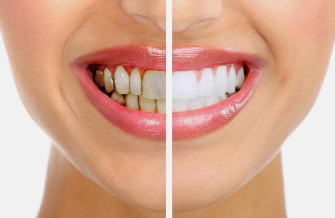 черный налет на зубах у взрослых