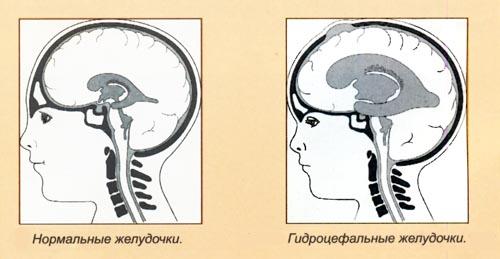 Диагностика ребенка на гидроцефалию