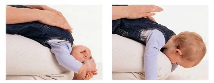 перкуссионный массаж при кашле у детей