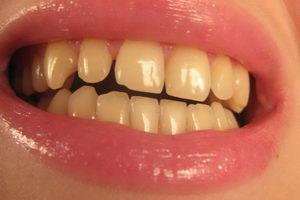 люминиры показаны на кривые зубы