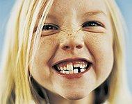 симптомы пародонтита у детей