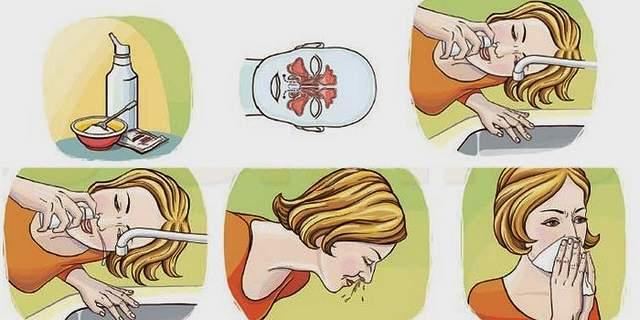 физраствор для промывания носа новорожденному инструкция