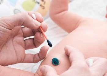Сколько заживает пупок у новорожденного и как его обрабатывать
