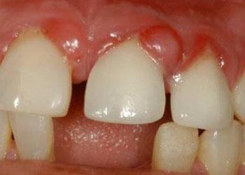 лечение гранулемы зуба народными средствами