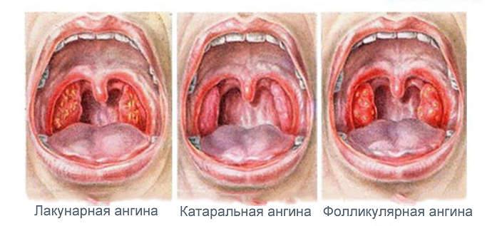 лакунарная ангина у детей комаровский